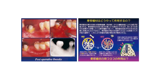 DE182-1 コラーゲンの基礎知識と抜歯創の治癒様式/リッジプリザベーション (63分)